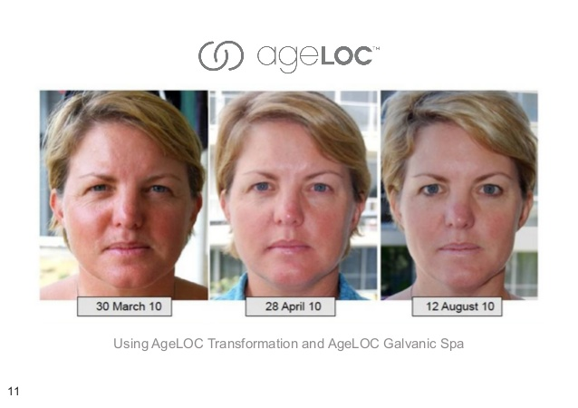 nu skin ageloc discounts an more is there 12 638